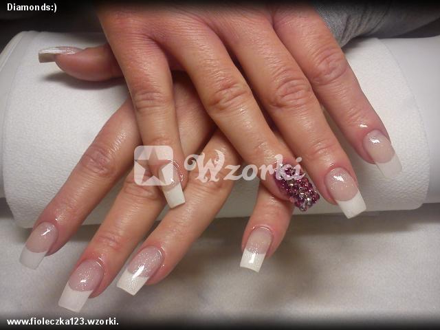 Diamonds:)