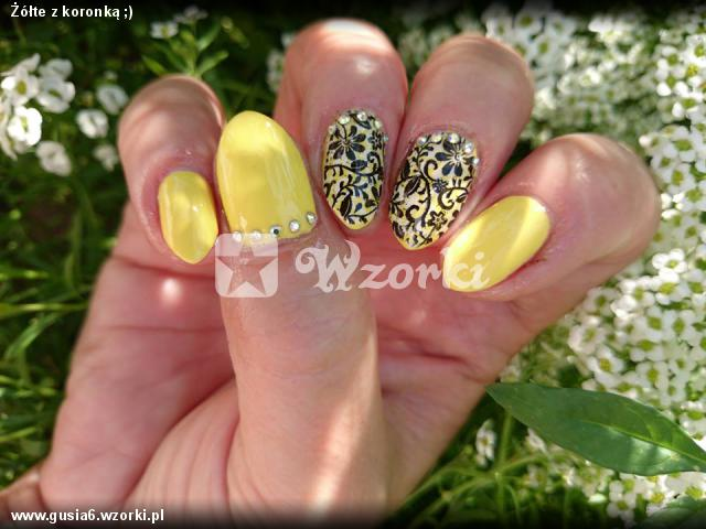Żółte z koronką ;)